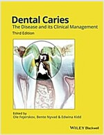 Dental Caries: The Disease and Its Clinical Management (Hardcover, 3, Revised)