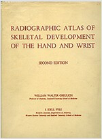 Radiographic Atlas of Skeletal Development of the Hand and Wrist (Hardcover, 2)