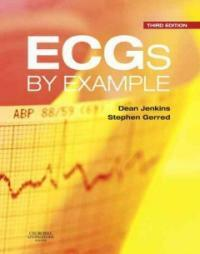 ECGs by example 3rd ed