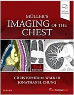 Muller's Imaging of the Chest (Hardcover, 2nd)