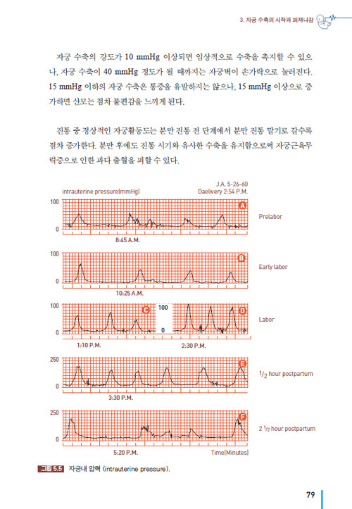 태아심장박동모니터링