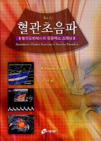 혈관초음파 : 혈관질환에서의 듀플렉스 스캐닝