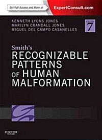 Smiths Recognizable Patterns of Human Malformation : Expert Consult - Online and Print (Hardcover, 7 Revised edition)