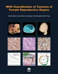 WHO Classification of Tumours of the Female Reproductive Organs 4th ed