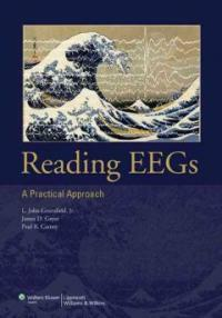 Reading EEGs : a practical approach