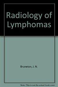 Radiology of lymphomas