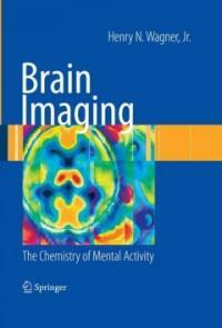 Brain imaging : the chemistry of mental activity