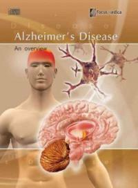 Alzheimer's disease : [electronic resource] : an overview