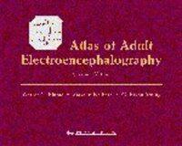 Atlas of adult electroencephalography 2nd ed