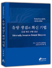 유방 생검의 최신 기법 : 진공 보조 유방 생검