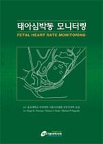 태아심박동 모니터링